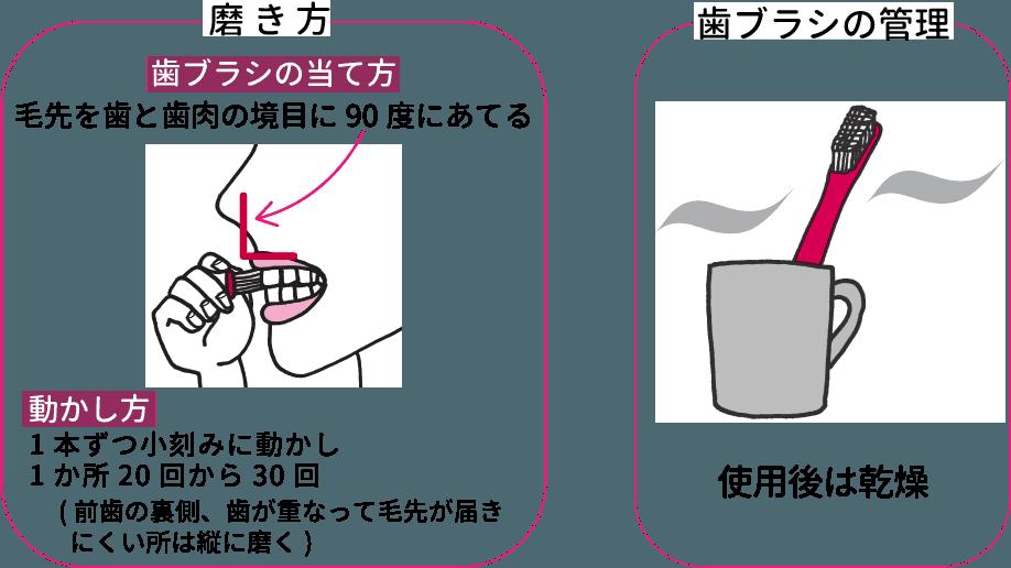 歯ブラシの大きさ、持ち方、磨き方、管理