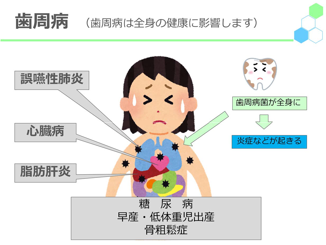 歯周病(歯周病は全身の健康に影響します)歯周病菌が全身に→炎症などが起きる誤嚥性肺炎・心臓病・脂肪肝炎糖尿病、早産・低体重児出産、骨粗鬆症